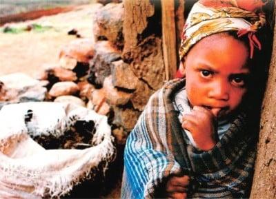 Imágenes desnutrición en África
