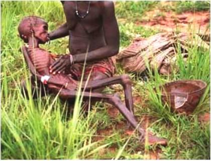 La Desnutrición África