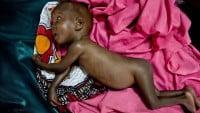La desnutrición afecta al desarrollo cognitivo de los niños