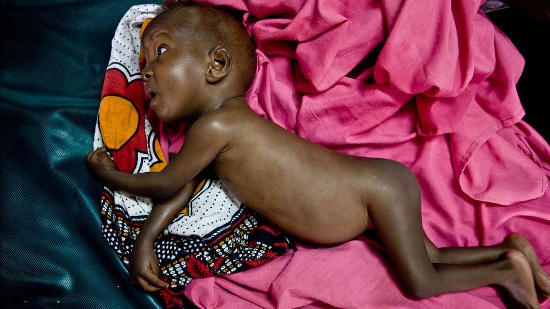 Resultado de imagen para Embarazadas desnutridas darán a luz bebés con alteraciones