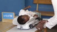 UNICEF y la desnutrición infantil