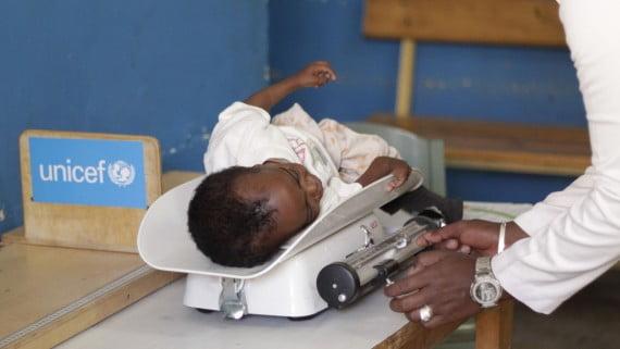 UNICEF eta haurren desnutrizioa