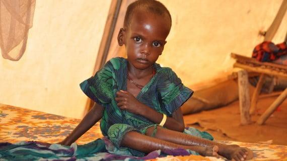 Desnutrizioaren ondorioz garapen fisikoan aldaketak