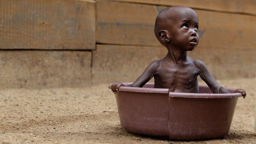La desnutrición infantil en África